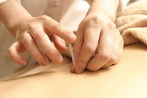 鍼灸(はりきゅう)